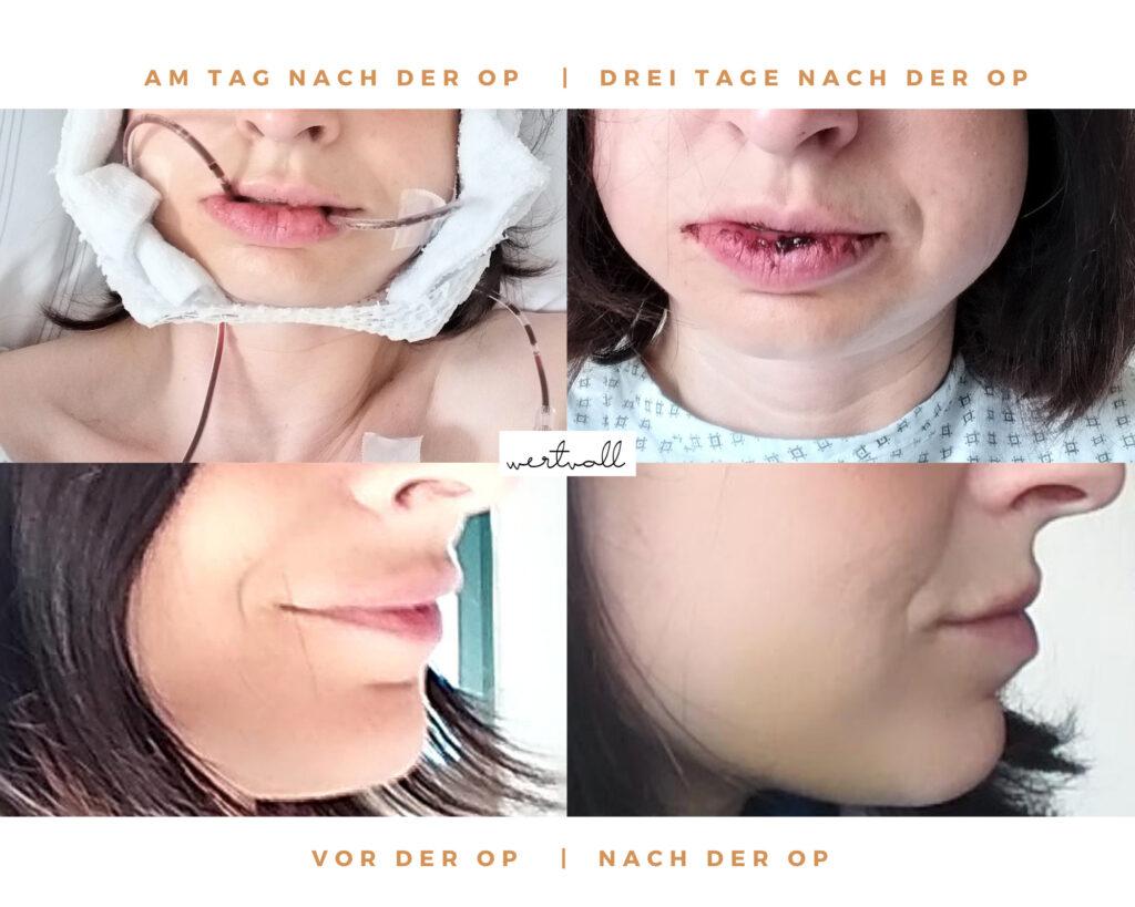 Zahnspange als Erwachsener, Kiefer-Operation