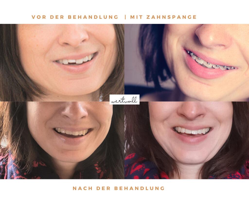 Zahnspange als Erwachsener
